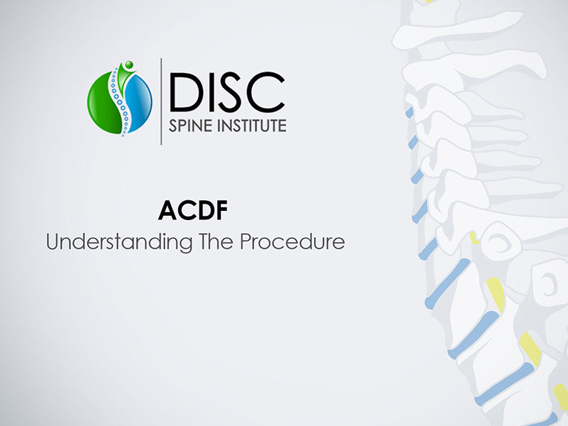 Anterior Cervical Discectomy & Fusion (ACDF)