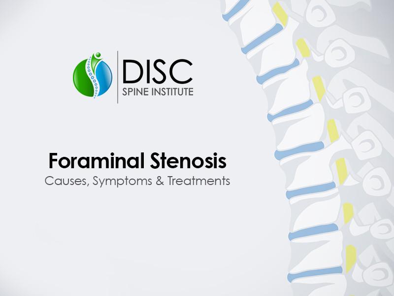 Foraminal Stenosis