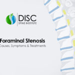 Foraminal Stenosis: Causes, Symptoms & Treatments