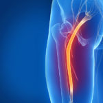What is the most effective sciatica treatment today?