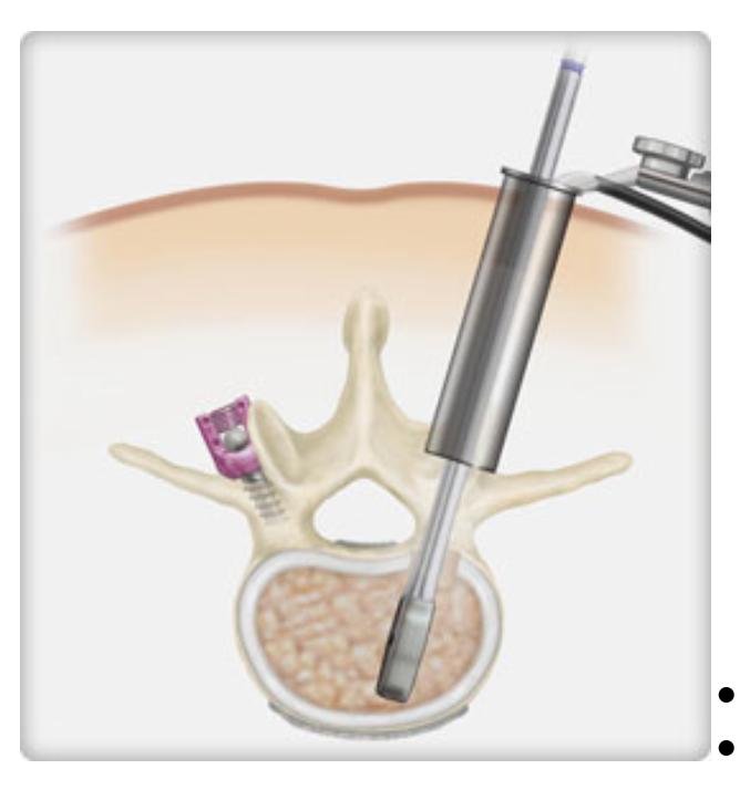 Traditional Vs Minimally Invasive Spine Fusion Procedure