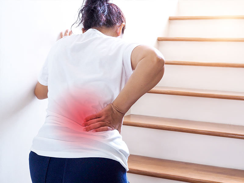 woman climbing stairs with myelopathy