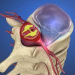 When do you know it's time for surgery for a herniated disc?