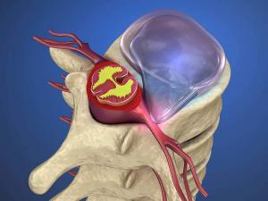 When do you know it's time for surgery for a herniated disc