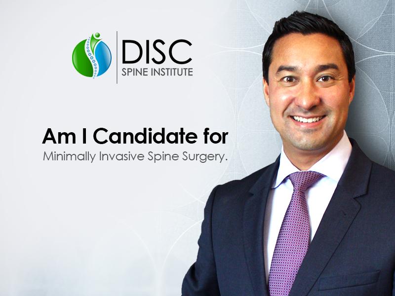 Minimally Invasive Candidate