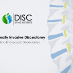 Minimally Invasive Discectomy: What to Expect
