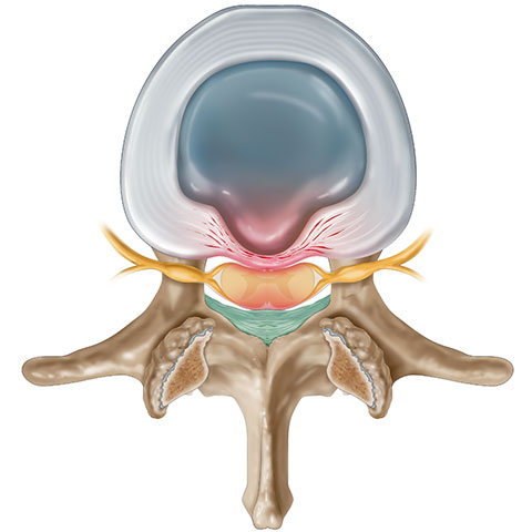 Picture of Buldging Disc