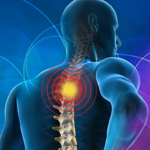 epidural steroid injection for neck pain