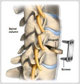 Anterior cervical discectomy and fusion (ACDF)